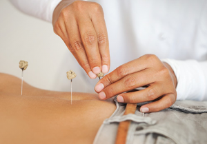 How Does Acupuncture For Fertility Work