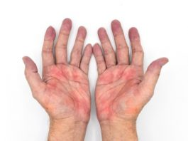 what is Palmer erythema